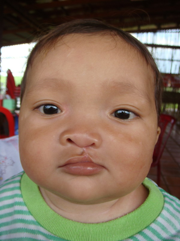 cleft lip before and after. Cleft Lip Surgery Report of